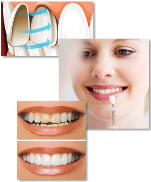 Porslinsfasader är tunna fasader för tänderna