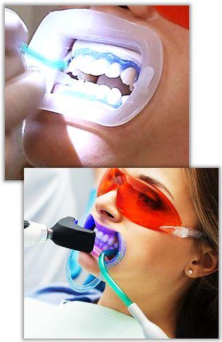 Stolsblekning av tänderna hos tandläkare