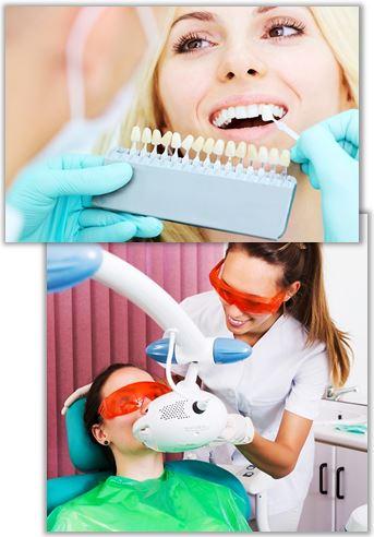 Tandblekning hos tandläkare