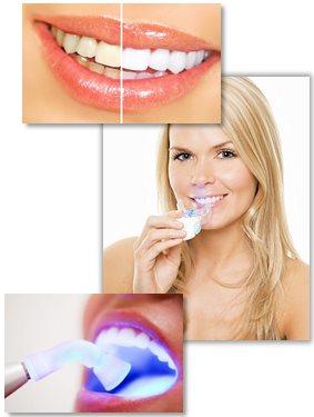 Tandblekning för vitare tänder