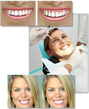 Behandling av tillbakadraget tandkött och gummy smile