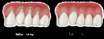 skadat tandkött läka