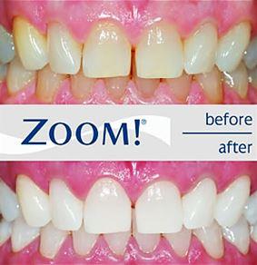 Resultat före och efter zoom tandblekning