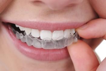 Invisalign tandställning