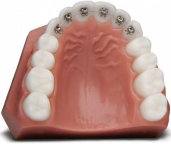 Osynliga tandställningar