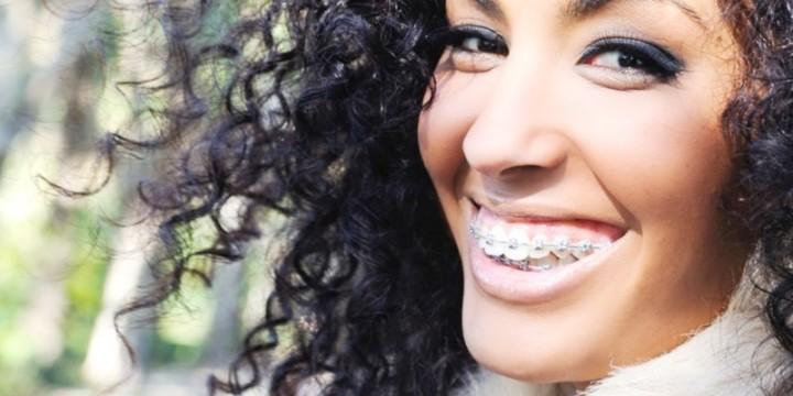 Tandreglering med tandställning