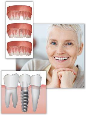 Tandersättning med tandimplantat.