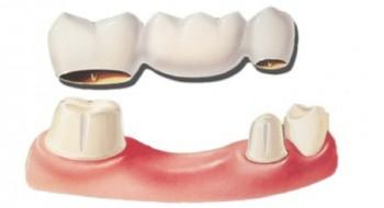 När är en tandbro den bästa lösningen?
