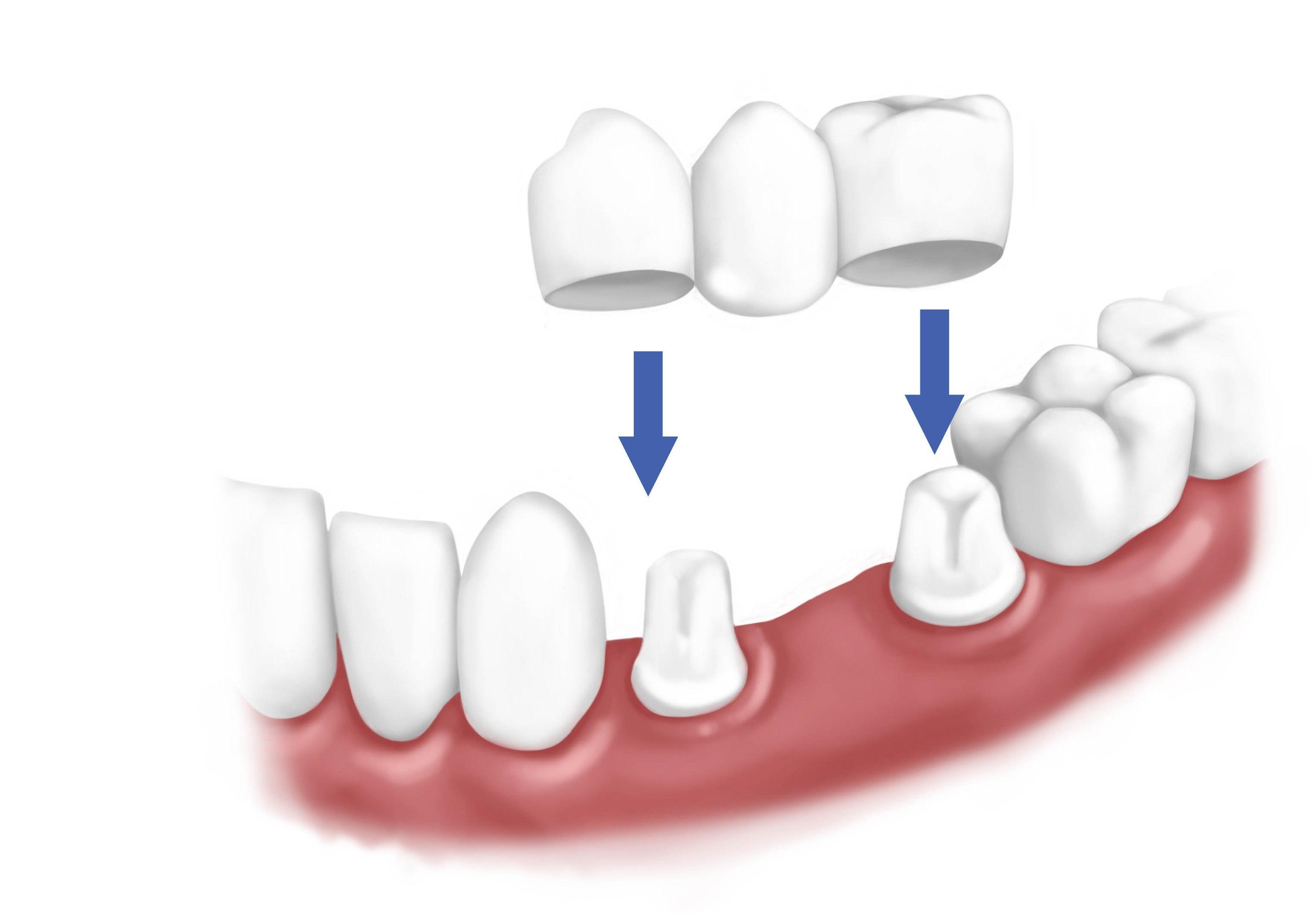 tandblekning klinik