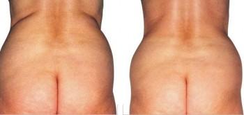 Bild före och efter LPG Endermologie behandling