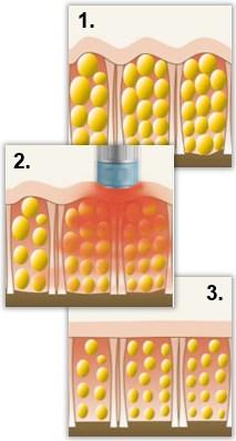 3. Strålning – ljus eller radiovågor som värmer, stimulerar och bryter ned
