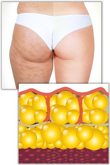 Behandling av celluliter