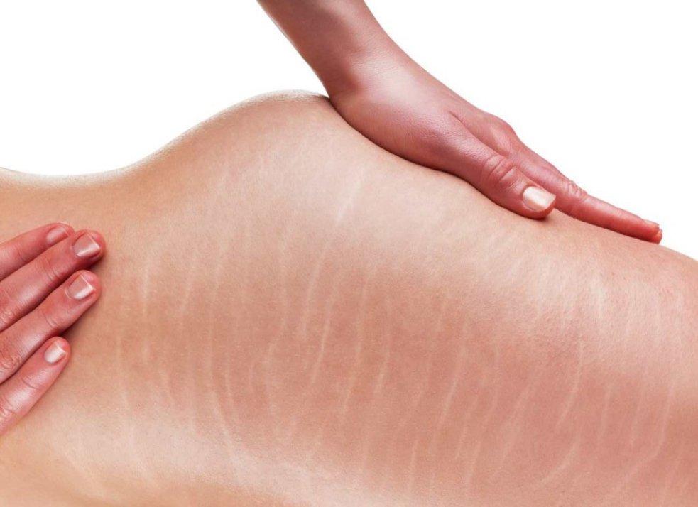 få bort hudbristningar