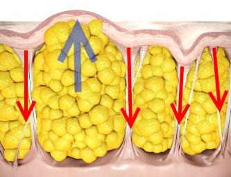 Metoder för cellulitbehandling