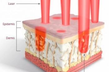 Kosmetiska laserbehandlingar