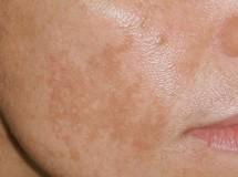 Melasma – en kartliknande överpigmentering av huden i ansiktet
