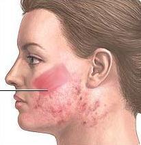 hudslipning före efter