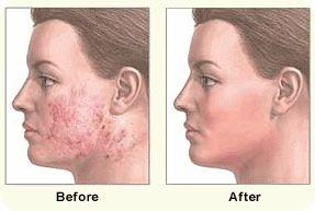 Bild före och efter hudslipning av kinder