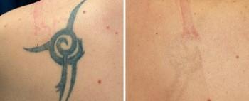 Resultaten varierar beroende på tatueringens färg, djup, ålder och placering