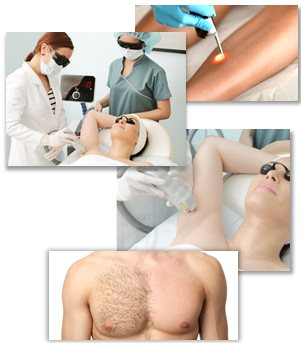 funkar laser hårborttagning