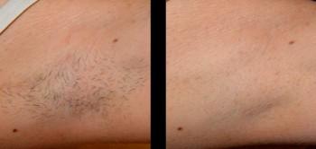 laser hårborttagning malmö pris