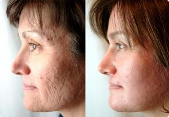 ansiktsbehandling mot rynkor
