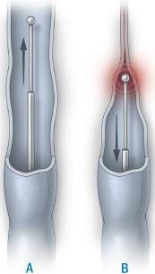 Laserbehandling av åderbråck