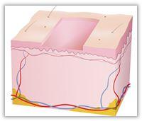 Helablativ laserslipning