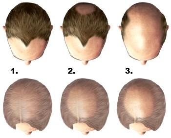 Utveckling av håravfall