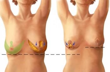 bröstlyft med implantat före och efter