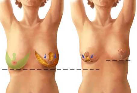 vad kostar bröstlyft
