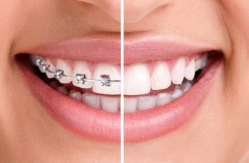 Introduktion till tandreglering med tandställning