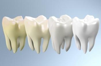 Introduktion till tandblekning