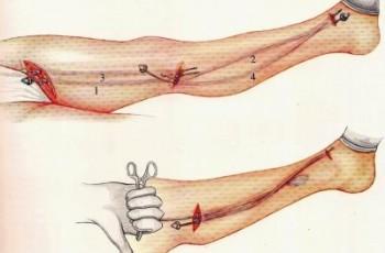 Åderbråcksoperation med stripping-teknik