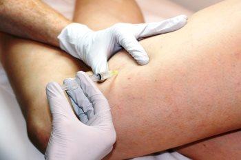 Injektionsbehandling av åderbråck
