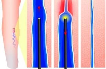 Radiofrekvens och laserbehandling av åderbråck