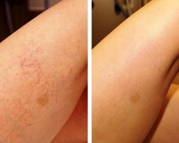blodpropp i foten symptomer