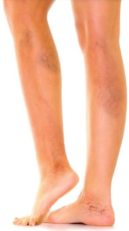 Ytliga blodkärl på benen orsak