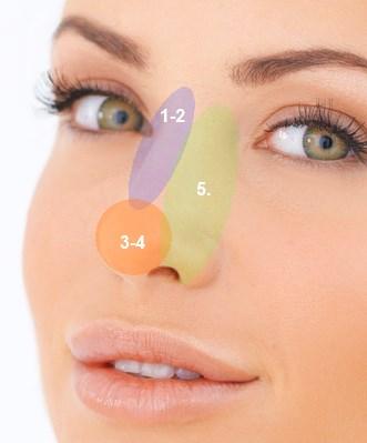 näskorrigering med fillers