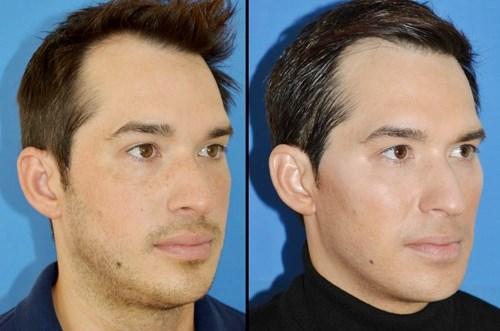 kindimplantat före och efter bilder