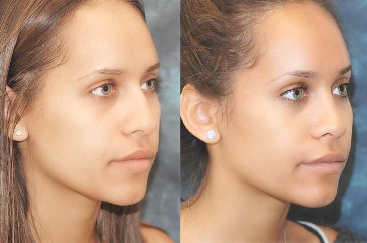 före och efter bilder