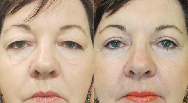 hängande ögonlock operation