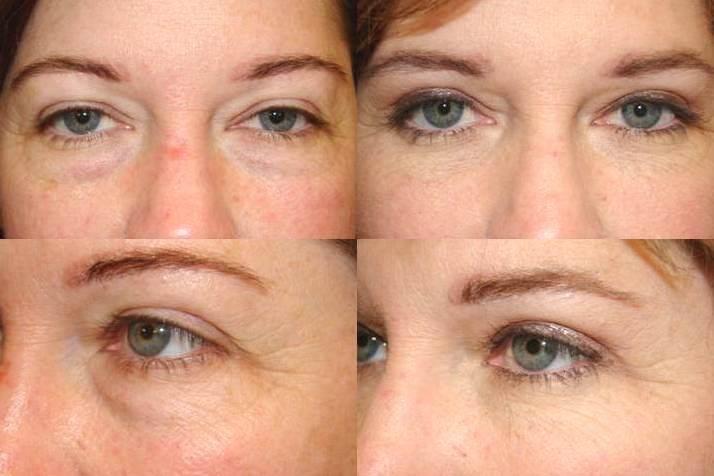 operera ögonlock med laser