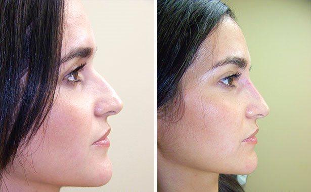 näskorrigering utan operation