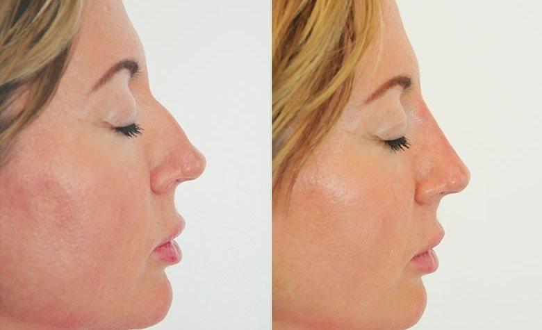 inflammation i näsan