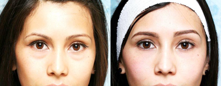 fillers under ögonen biverkningar