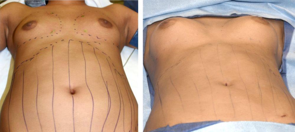 fettransplantation bröstförstoring pris