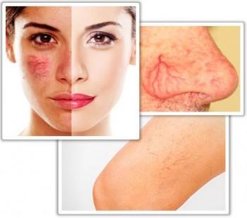 Ta bort synliga blodkärl i ansiktet och på kroppen