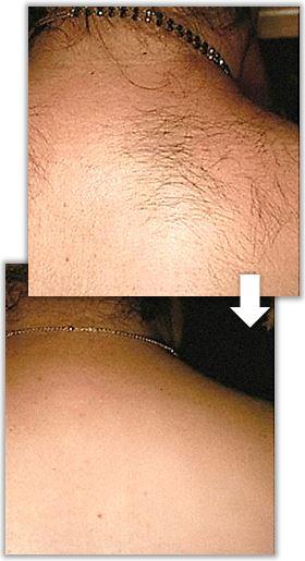 Före och efter behandling av hirsutism