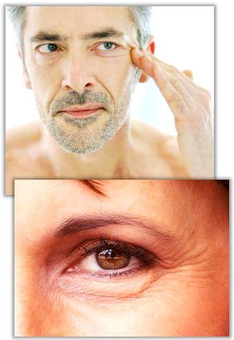 Behandlingar för att ta bort rynkor under ögonen